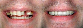 Smile Gallery - Galleria Dental, Mundelein Dentist