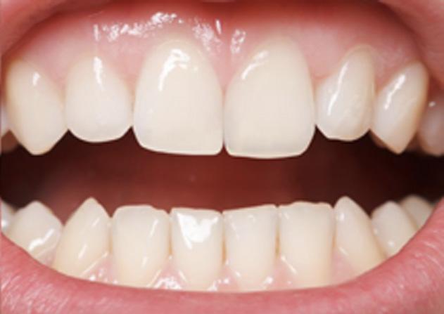 Cosmetic Bonding  - Galleria Dental, Mundelein Dentist