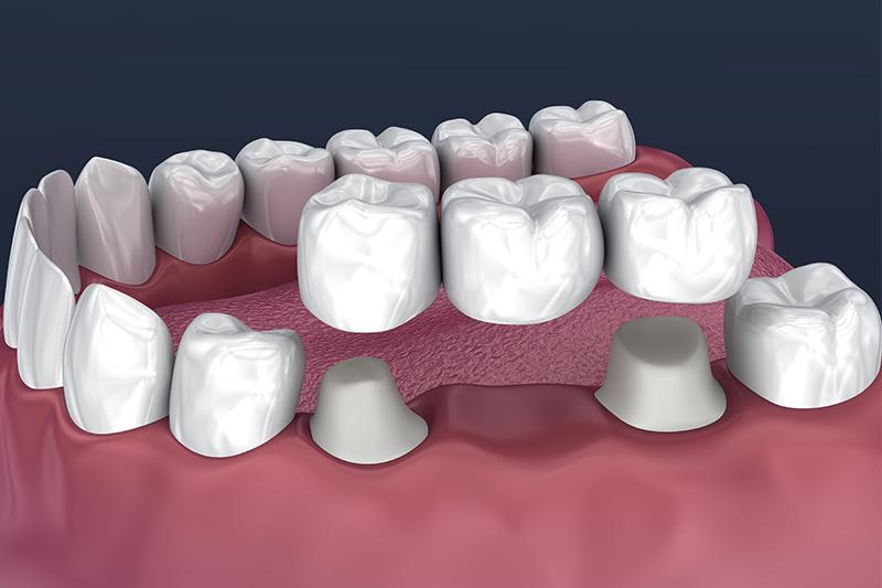 Crowns and Bridges, Inlays and Onlays  - Galleria Dental, Mundelein Dentist