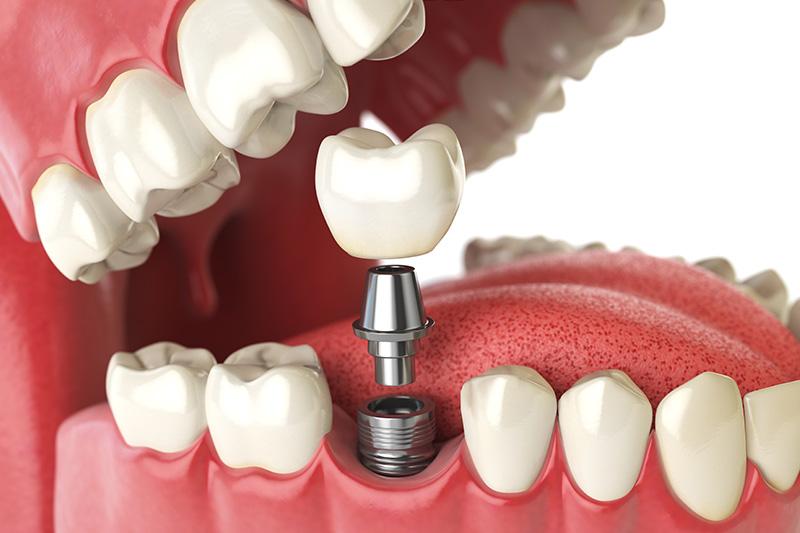 Dental Implants - Galleria Dental, Mundelein Dentist