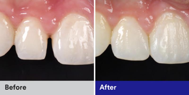 BioClear Diastema Closure and Black Triangle Closure  - Galleria Dental, Mundelein Dentist