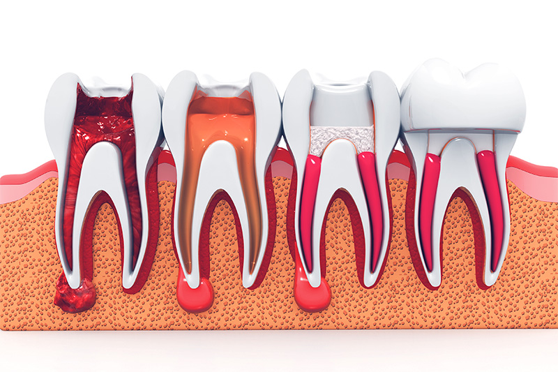Root Canal Therapy  - Galleria Dental, Mundelein Dentist