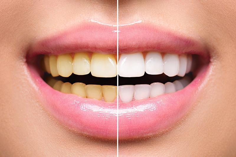 Teeth Whitening - Galleria Dental, Mundelein Dentist