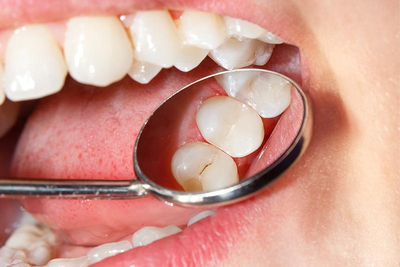 Tooth Colored Composite Fillings  - Galleria Dental, Mundelein Dentist