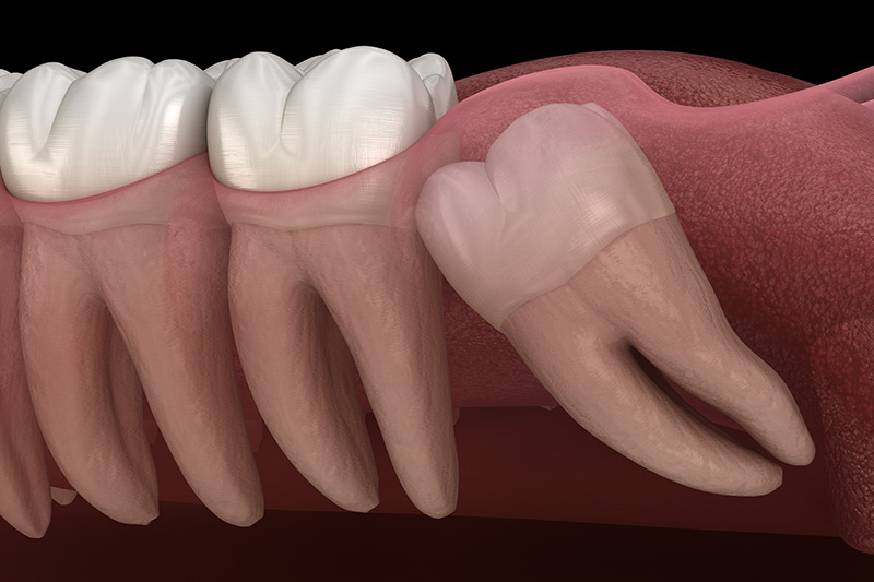 Wisdom Teeth Extractions (with Sedation)  - Galleria Dental, Mundelein Dentist
